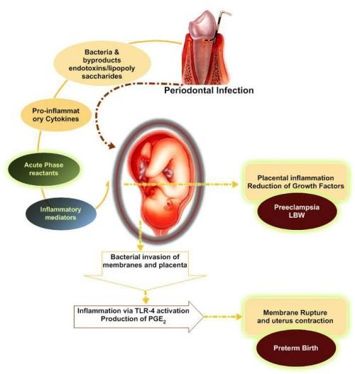 Ảnh hường của viêm nha chu với kết cuộc thai kỳ 1