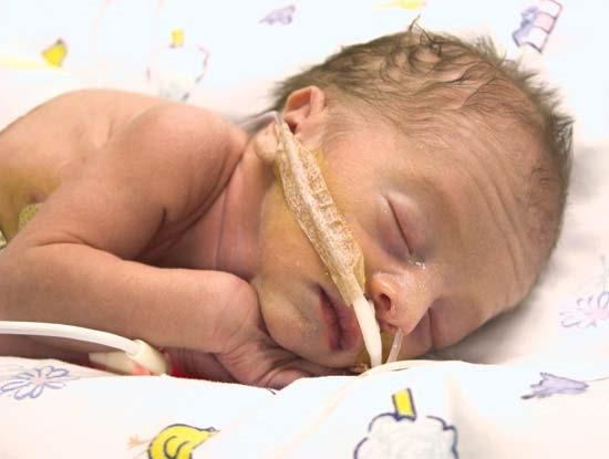 Thai nhi sẽ gánh chịu biến chứng gì nếu mẹ bầu bị bệnh răng lợi nặng? 1