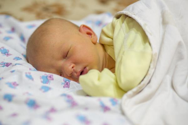 Bệnh vàng da ở trẻ sơ sinh - Phân biệt vàng da sinh lý và bệnh lý