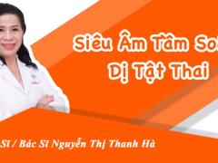 sieu-am-tam-soat-di-tat-thai-nhi