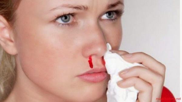 Bà bầu bị chảy máu cam có phải dấu hiệu bất thường hay không?